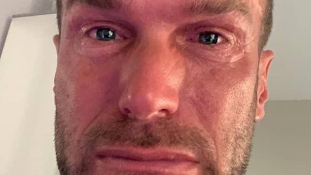 Bastian Yotta teilt ein Tränen-Bild