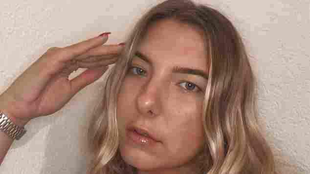 Joelina Karabas hat sich einem Beauty-Eingriff unterzogen