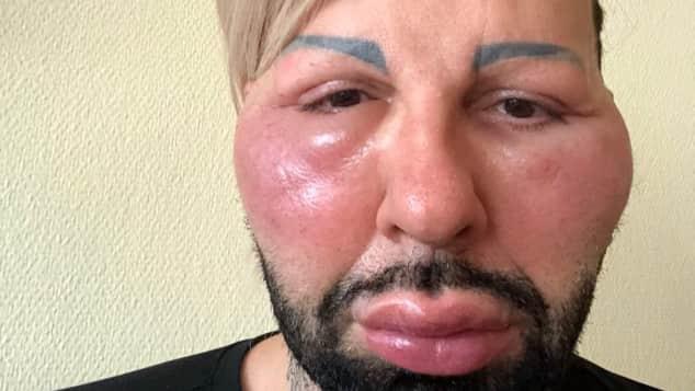 Harald Glööckler mit angeschwollenem Gesicht nach einer allergischen Reaktion