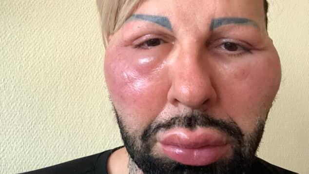 Nach Allergie-Schock: Harald Glööckler nimmt sich Auszeit
