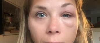 Tanja Szewczenko wurde heftig von Wespe gestochen