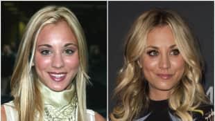 Kaley Cuoco im Vorher-Nachher-Vergleich vor und nach ihrer Nasen-OP