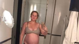 Amy Schumer ist schwanger