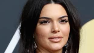 Kendall Jenner Akne Golden Globes