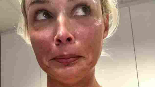 Daniela Katzenberger Beauty Behandlung