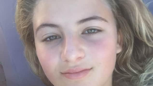 Emma Schweiger ungeschminkt hübsch