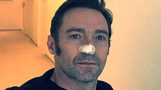 Hugh Jackman Krebs Hautkrebs Australische Sonne Sonnencreme Instagram Nase verbunden Verband Krebs-Zellen Geschwür Schauspieler Wolverine