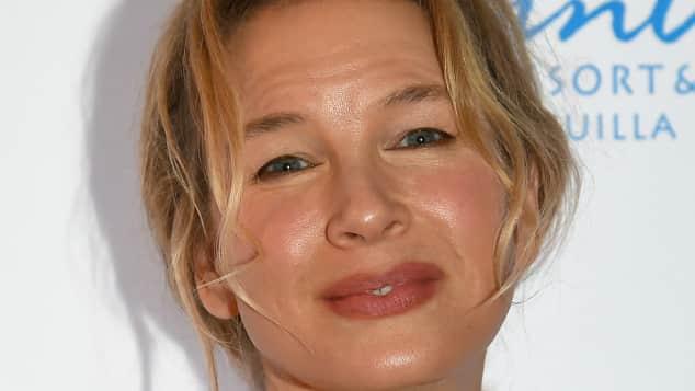 Bei Renée Zellweger hat der Beauty-Doc nachgeholfen