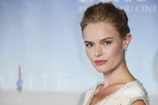 Promis mit seltsamen Körperteilen, Kate Bosworth, Promis mit Schönheitsmakel