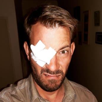 Gerald Heiser Auge Instagram krank