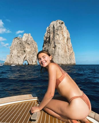 Stefanie Giesinger mit Mini-Makel: Sie zeigt ihre Cellulitis